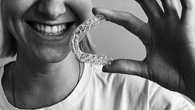 Nauja galimybė JK lietuviams – dantų tiesinimas be breketų Londone