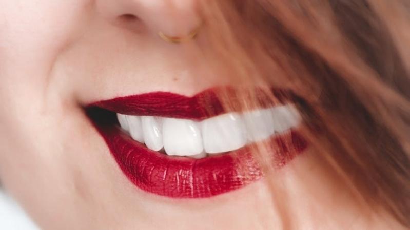JK lietuvių patogumui – dantų implantacija Londone