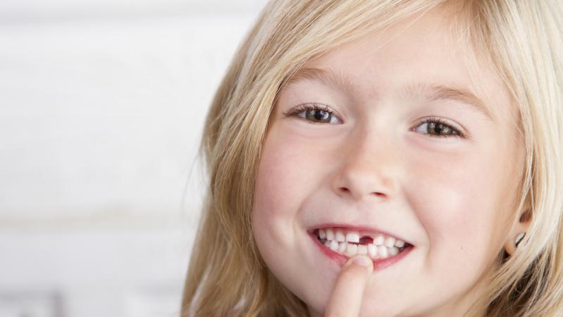 JK ligoninėse vaikams dažniausiai ... šalinami supuvę dantys
