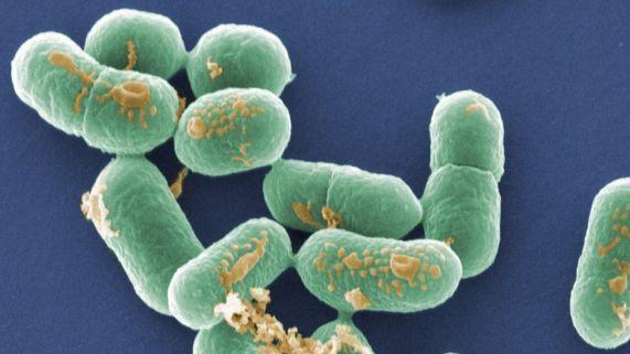 Listeriozės protrūkis JK ligoninėse, jau mirė 5 žmonės
