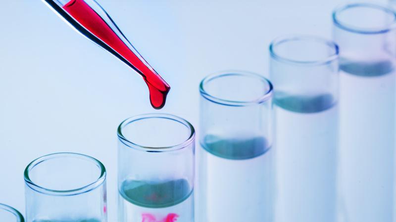 JK valdžia paskelbė penkių punktų planą dėl koronaviruso, žada 100 tūkst. tyrimų per dieną