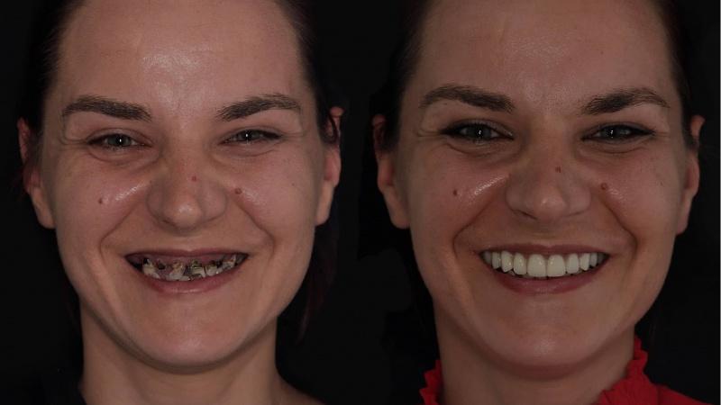 """JK lietuviams skirto projekto """"Noriu šypsotis!"""" laimėtojai džiaugiasi įspūdingais pokyčiais [FOTO]"""