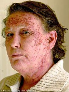 Po plaukų dažymo moteris tapo panaši į zombį
