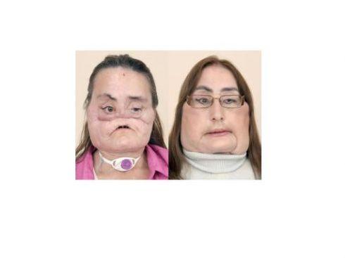 Amerikietei persodintas mirusios moters veidas