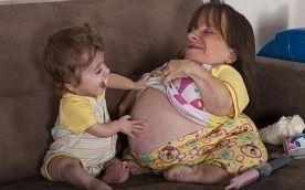 Mažiausia pasaulio motina laukiasi trečiojo vaiko